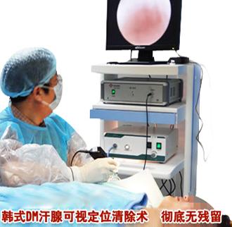 韩式DM汗腺可视定位清除术 准确定位 精细无痕
